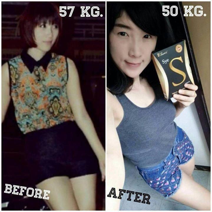 รีวิว อาหารเสริมลดน้ำหนัก ลดความอ้วน Sye S ซายเอส by เชียร์ ฑิฆัมพร