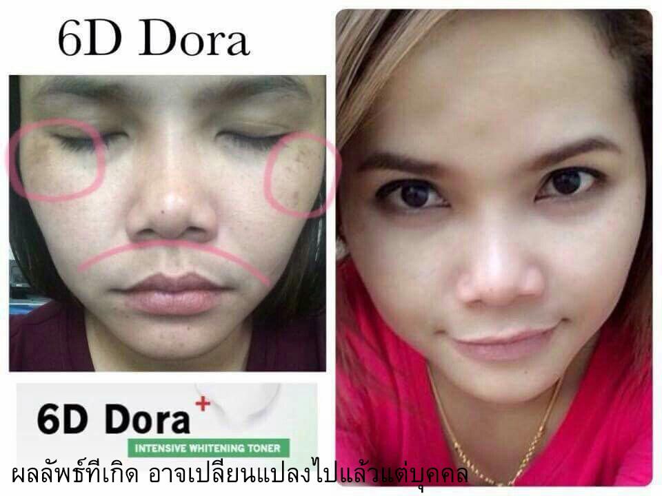 6D Dora ก่อนใช้ หลังใช้